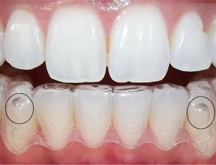 How to effectively use the invisalign treatment as per your requirements