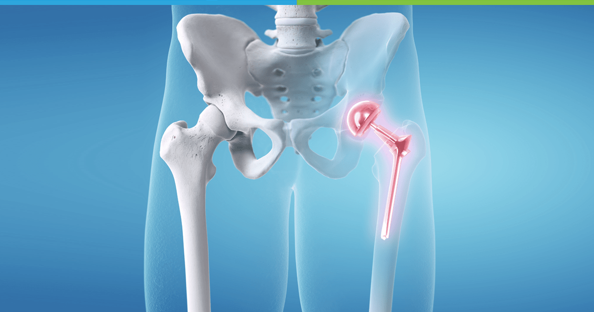 Knee Joint Replacement Surgery