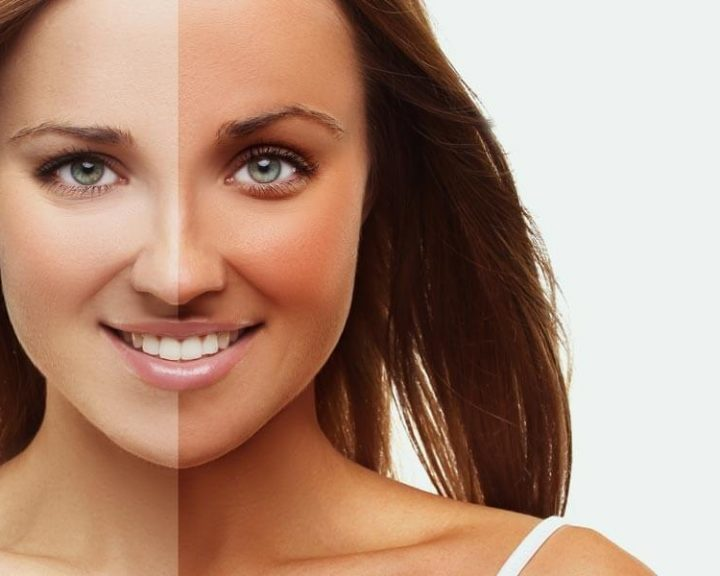 More About Melanotan Revolutionizing the Tanning World